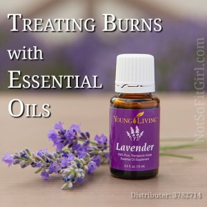 How to Treat Burns with Essential Oils